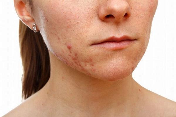 18570408_m-1-600x399 【皮膚科医推奨】ニキビ・ニキビ跡を治すなら~おすすめの治し方全集