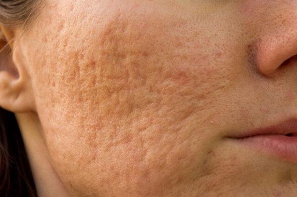 21045537_m-1-600x397 【皮膚科医推奨】ニキビ・ニキビ跡を治すなら~おすすめの治し方全集