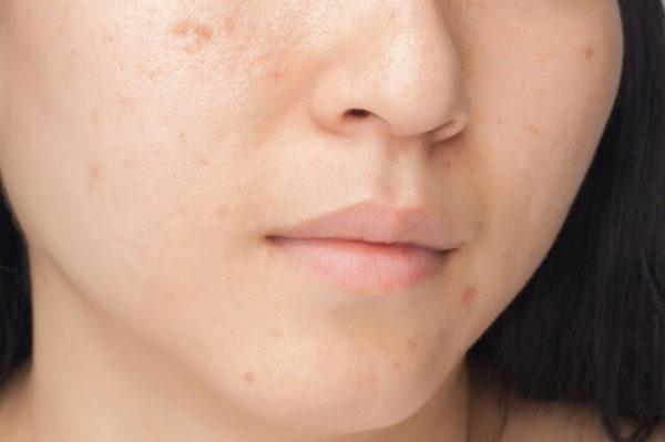 22967749_m-1-600x399 【皮膚科医推奨】ニキビ・ニキビ跡を治すなら~おすすめの治し方全集