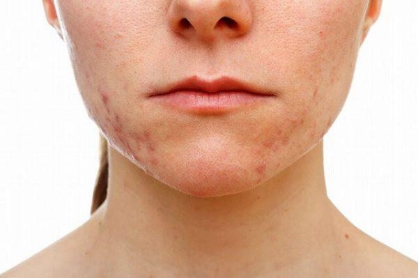 18570759_m-1-600x399 【男女別】顎ニキビができる原因と正しい6つの治し方