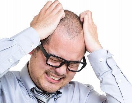 Dollarphotoclub_65750617 M字はげ治療で発毛実感率が一番高いのは?専門家が出した1つの結論
