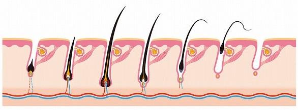 30378726_m 【ハゲ・薄毛】の進行を本格的に予防するための4つの方法