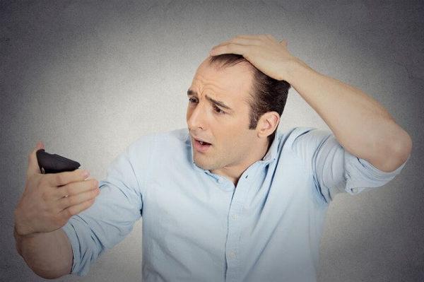 34938069_m-2-600x399 【ハゲ・薄毛】の進行を本格的に予防するための4つの方法