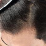 77986492_s-1-150x150 薄毛からの卒業!髪の毛を太くして増やす6つの方法